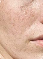 珍珠粉蜂蜜面膜的功效