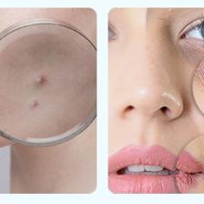 隔离霜不卸妆会怎样 用什么卸妆温和不伤皮肤