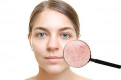 油性皮肤祛痘方法