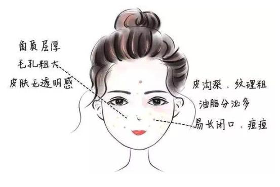 油性肌肤皮肤特征示意图